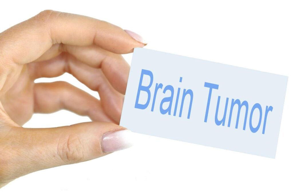 Brain Tumor : Symptoms, and Causes